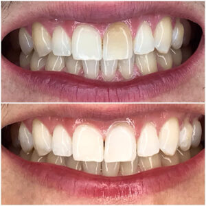 Treatment of tooth 21 with dental bonding only, after root canal treatment caused intrinsic staining.