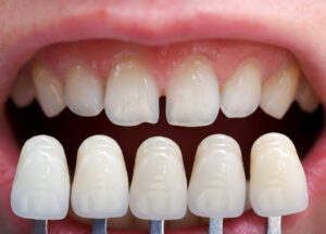 Use of shade guide to assess colour of natural dentition chairside prior to dental bonding or whitening procedure for record keeping purposes
