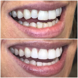 Treatment of mild crowding on upper and lower arches. Teeth 12 to 22 and 32 to 42 treated with dental bonding to mask chipping and crowding following an orthodontic refinement treatment using Invisalign.