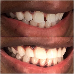 Teeth 12 to 22 treated with dental bonding to close diastema and restore proportions