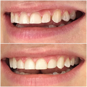 Teeth 12 to 22 treated with dental bonding to restore integrity of enamel and close diastema