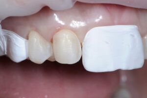 Use of teflon tape on adjacent teeth for isolation purposes when bonding. Also used as an alternative to a mylar matrix system for better adaptation and contouring during treatment.