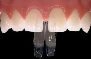 Bioclear matrix system used to maintain proportions and provide optimal gingival adaptation during dental bonding procedure when closing a diastema. 10. Case of severe anterior wear due to traumatic occlusive forces and parafunction corrected with dental bonding. Teeth 12 to 22 and 32 to 42 were treated by restoring the teeth to a more physiologically acceptable occlusion.