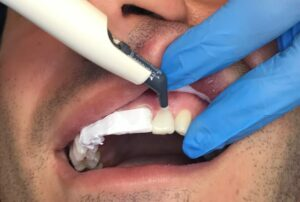 . Direct application of packable Evanesce composite (Clinical Research Dental) in shade BL1 to tooth 22. 1