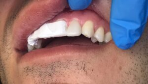 . Teflon tape is applied interproximally and wrapped around tooth 21 when bonding 22.