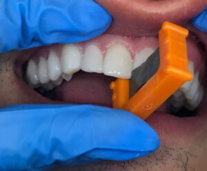 . TruContact mini saw (Clinical Research Dental) is used to open the tight contact between teeth 11 and 21.