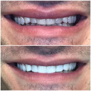 Frontal view before and after bonding teeth 16 to 26.