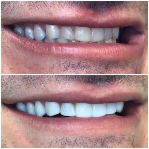 Right side view before and after bonding teeth 16 to 26.