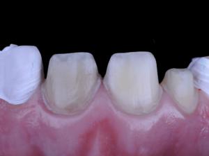 Figure 2: Prepared teeth