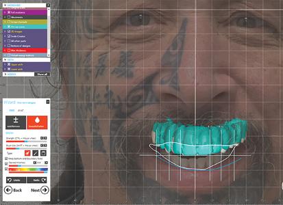 Designing a digital smile on exocad software.