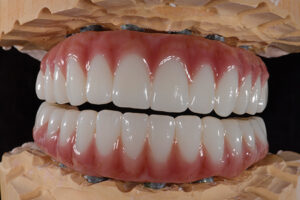 Final solid zirconia dual arch with all the details and the human touch.