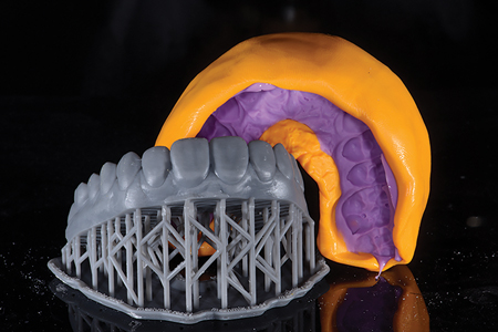 Printed model with silicone index to make the Pop In Smile® and the temporaries.