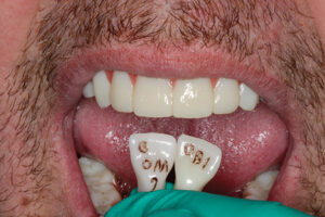Custom made zirconia shade guid in the mouth.