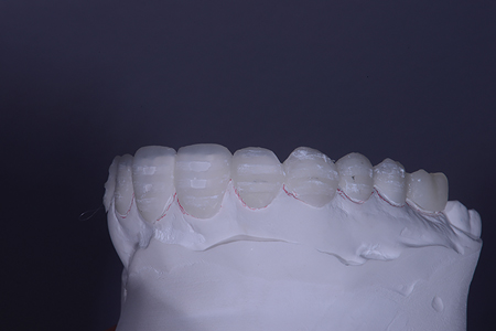 After placing the depth cut reduction Pop In Smile® on a solid pre-op model showing no enamel was touched.