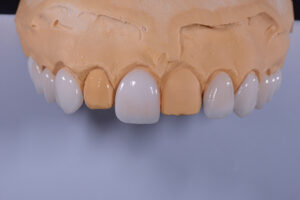 Showing the difference in teeth length and tissue harmony.