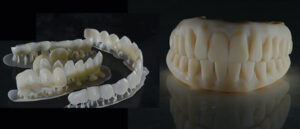 Temporary veneers/Pop In Smile® and PMMA for hybrids that have been printed.