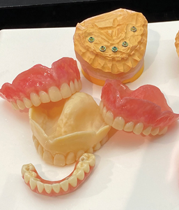 Printed dentures and printed implant retained bridge with pink wax used ONLY for try in purposes.