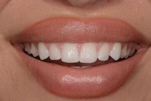 . Pre-op small teeth prior to veneers.