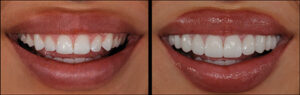 Pre and try in printed removable Pop In Smile® veneers.