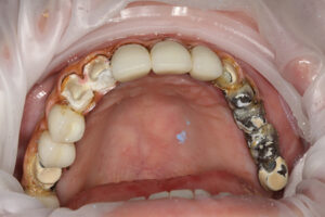. What is under an failing implant retained bridge made with a metal frame and single crowns with pink composite for tissue.