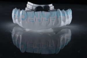 Green stage of zirconia is very soft making shaping and texturizing easier and the best time for colouring the effects for characterization.