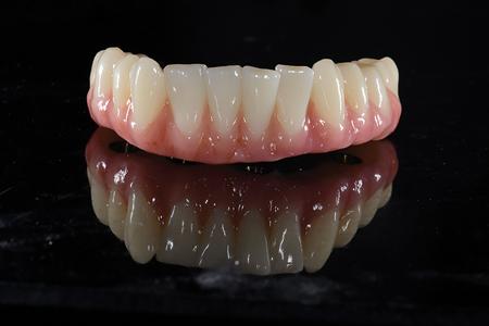 Monolithic zirconia implant retained hybrid denture.