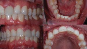 Pre-orthodontic photos, initial presentation.