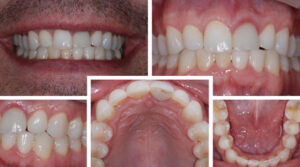 Post-orthodontic photos, which show the better anterior alignment and occlusal scheme allowing for a new restoration with no occlusal interferences on tooth #9.