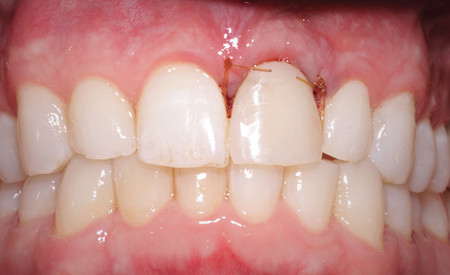 . Immediately post-placement. The gingival tissue placement is in an ideal position following surgery and immediate provisionalization.