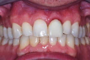 Final restoration seated. It is of note that the gingival tissue was slightly irritated upon delivery.