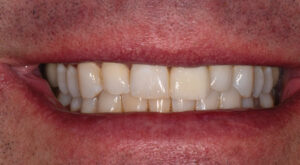 1.5 year post op follow-up. The tissue has not receded, and the gingival margins are still in a favorable position.