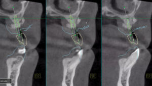Images from Prexion Excelsior CBCT machine used to access ideal implant placement.