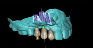 Itero scan merged with CBCT images and digital mockup.