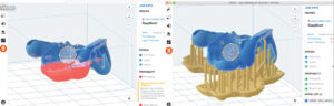Surgical guide design file alignment with Preform software on FormLabs 3D printer.