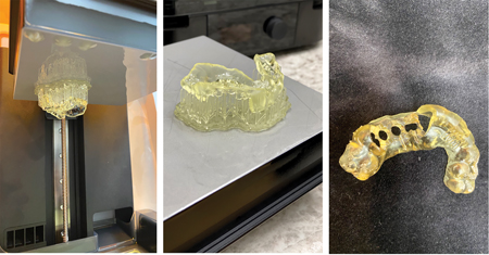 Fabrication of surgical guide on FormLabs Form 3 3D Printer: Printed, Rinsed and Cured. After curing, guide sleeves are placed in the implant guide holes.