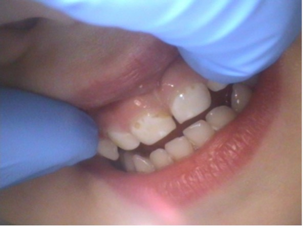 3-year-old patient with visible caries