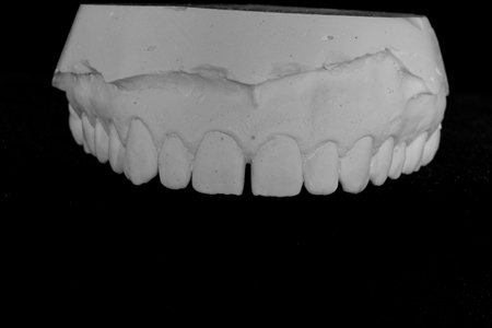 Pre-op maxillary diagnostic cast.