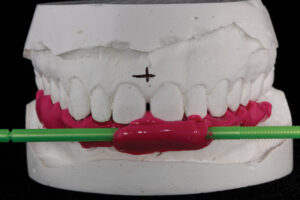 Relationship of stick bite to maxillary cas