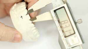 Single tooth width measurement.