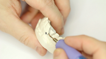Establishing outline form in wax.