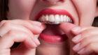 Heading Off the Orthodontics DIYers