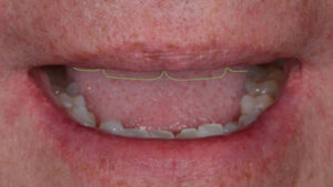 The Lip at Rest photograph can provide a valuable reference when commencing aesthetic planning. Appropriate incisal display at rest will vary between males and females with 1-2mm of display being deemed aesthetic for males and 2-4mm for females.