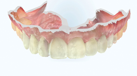 Provisionals in-situ, photographed and scanned.