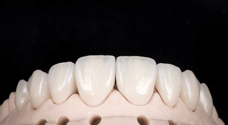Final Restorations photographed on model before clinical try in.