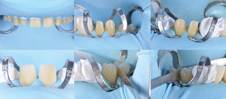 Preparation were isolated with rubber dam during delivery of the ceramic restorations, ensuring a controlled, dry field of operation to complete the bonding process.