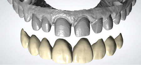 Imposition of digitally designed restorations over the scanned preparations.