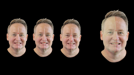Historically, varying facial landmarks have been advocated as appropriate reference to the facial midline. A novel approach involves assessment of this as a facial flow line that intersects the glabella, nose-bridge, philtrum, and chin.