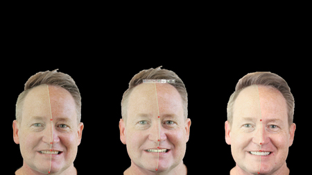 Facial flow analysis conducted alongside complete dentofacial aesthetic evaluation at each critical stage: initial, wax-up, mock-up and final try-in