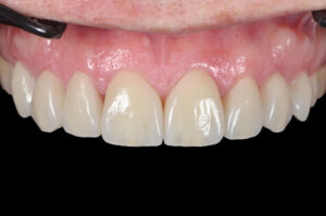 Final restorations in place. The interdental space was well managed with the restorations and the integration of the restorations with the natural tooth structure leaves a beautiful result.