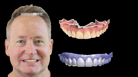 Digital models were calibrated with the patient's facial photographs ensuring the digital wax-up appropriately addressed all areas of visual tension. Facial flow analysis was completed ensuring the teeth sat in harmony within the patients face.